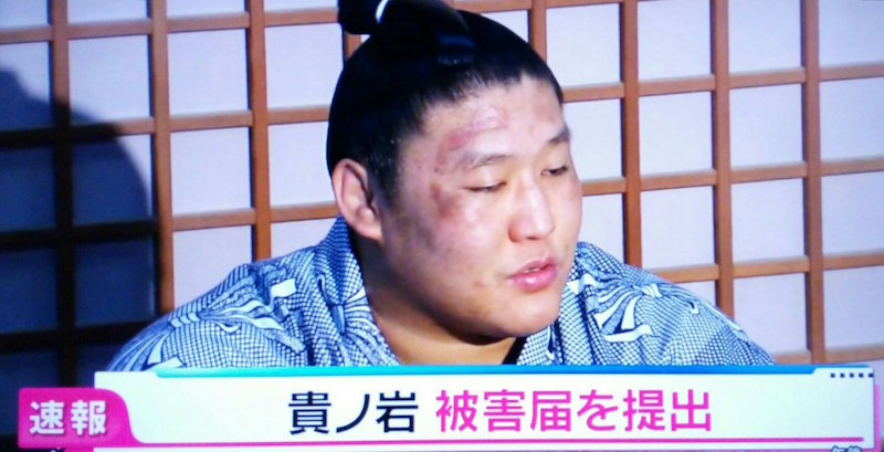 bruised takanoiwa